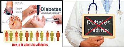 Mengenali Gejala Diabetes, Mencegah dan Mengobatinya