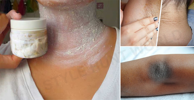 How To Lighten Dark Neck Within 15 Minutes!