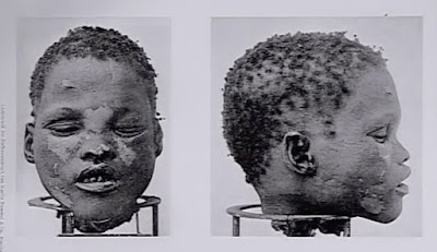 Kομμένο κεφάλι Αφρικανού – σοκαριστικό