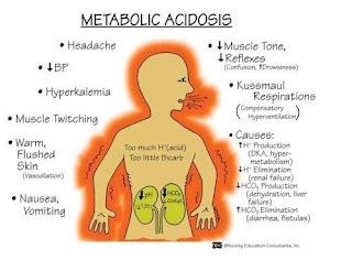 acidosis-www.healthnote25.com