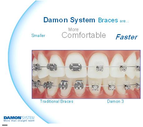 My Braces Story 2 Put On Braces Damon Braces System
