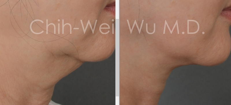 2020年10月最新拉皮手術案例:火雞脖與頸部拉皮,拉皮手術權威吳至偉醫師