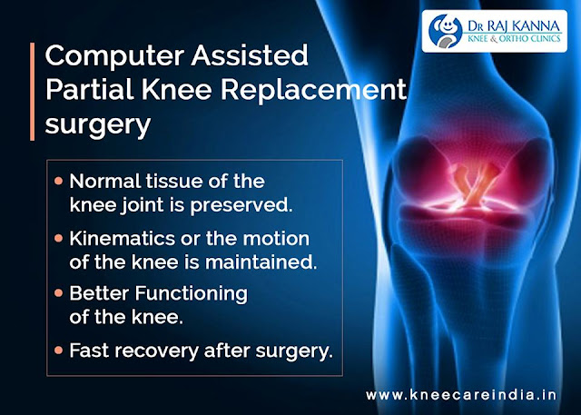 Knee Replacement in Chennai