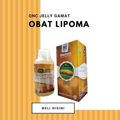 Obat Lipoma