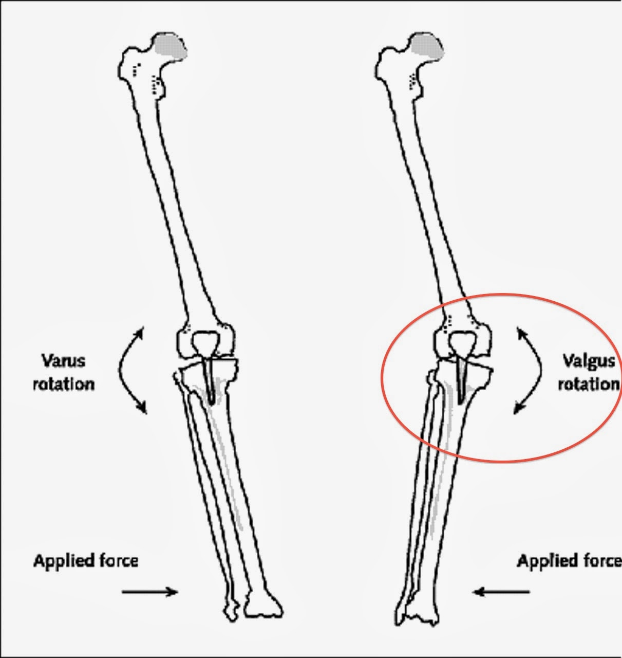 A Pop Knee