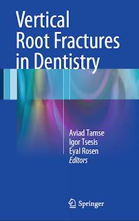 Vertical Root Fractures in Dentistry