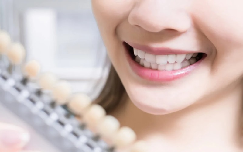 Cara Memutihkan Gigi Kuning Secara