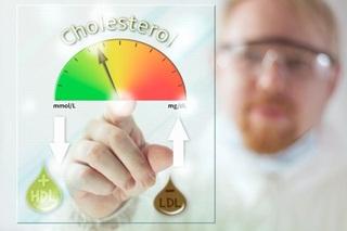 Kadar Kolesterol Normal dalam darah pada orang dewasa