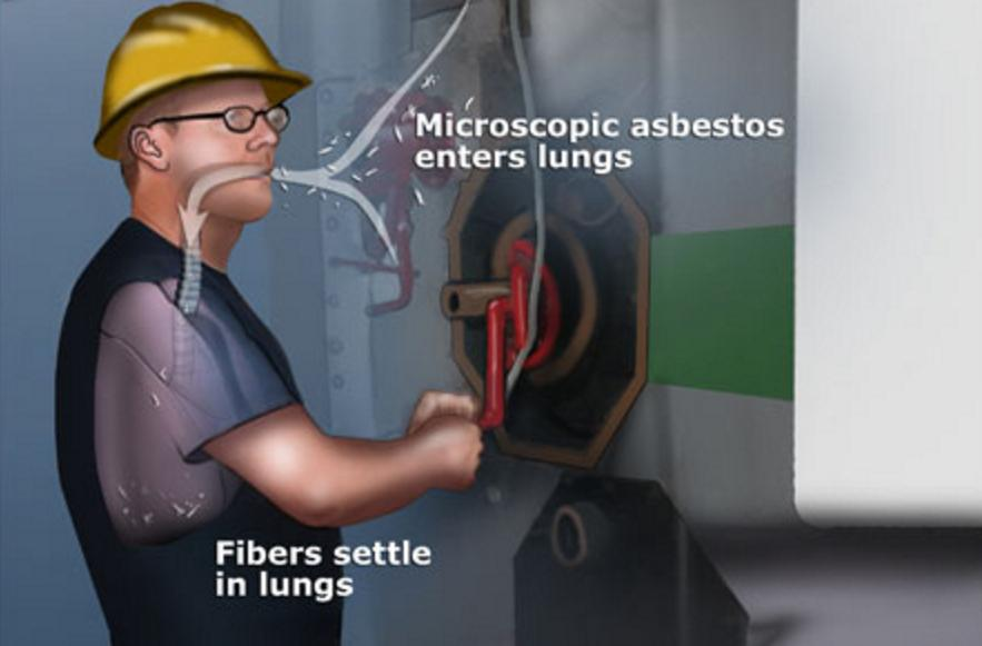 Asbestos in Lungs Symptoms