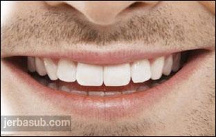ابتسامة هوليود في خميس مشيط