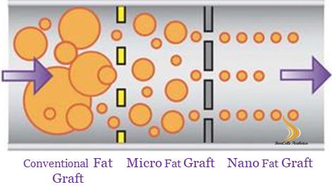 奈米自體脂肪移植:本世紀最具突破性的整形手術發明之一