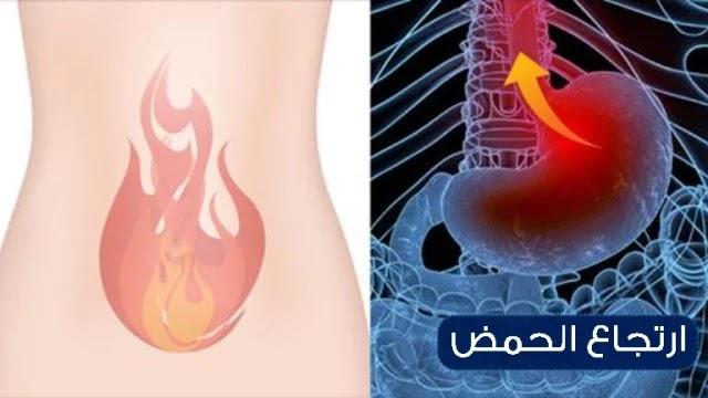 مرض الارتجاع المعدي المريئي - Gastroesophageal reflux