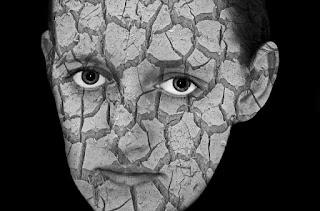 Kulit Wajah Kering dan Mengelupas