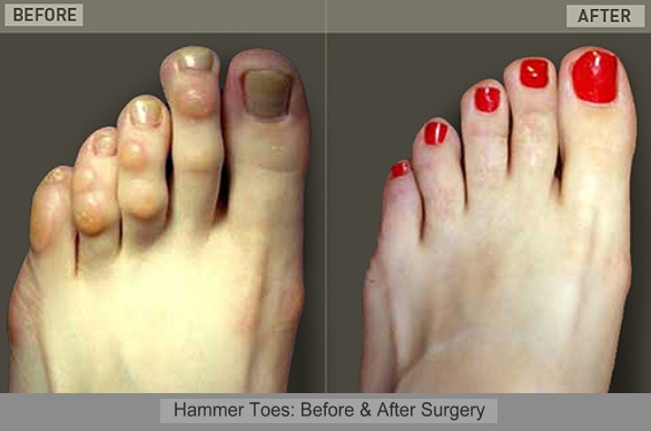 Hammer Toes Before and After Surgery