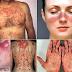 Waspadai! 'Lupus' Penyakit Berbahaya Mematikan