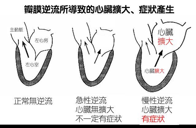 瓣膜逆流若造成心臟結構改變,往往會有症狀