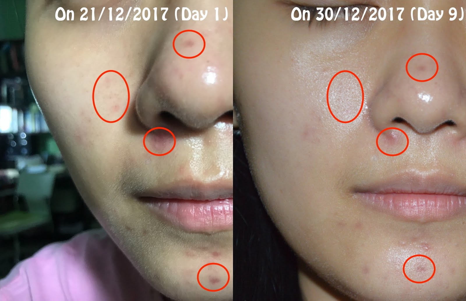 how to remove acne scars fast