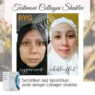 Kebaikan, Harga, Review Testimoni Collagen Powder Shaklee