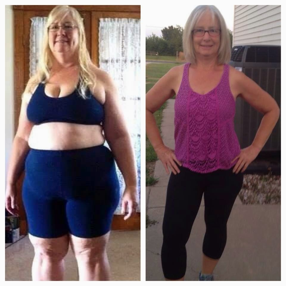 Diet Skeptic: Medifast Before and After Pictures: TSFL ...