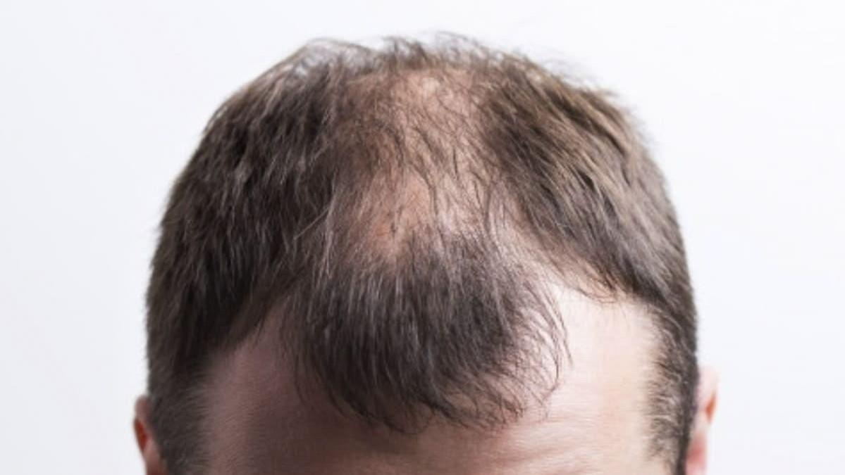 perdida-de-cabello-por-estres