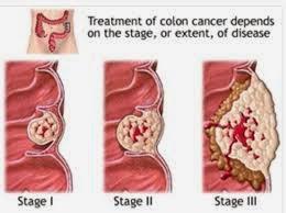 tahapan penanganan kanker usus besar