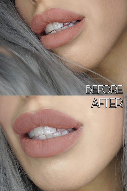Before and after Billion Dollar smile USB kit usage