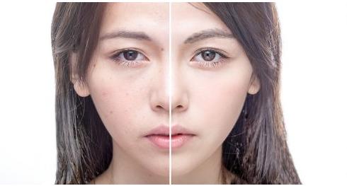 Nhận biết chính xác dấu hiệu của một làn da cần dưỡng ẩm