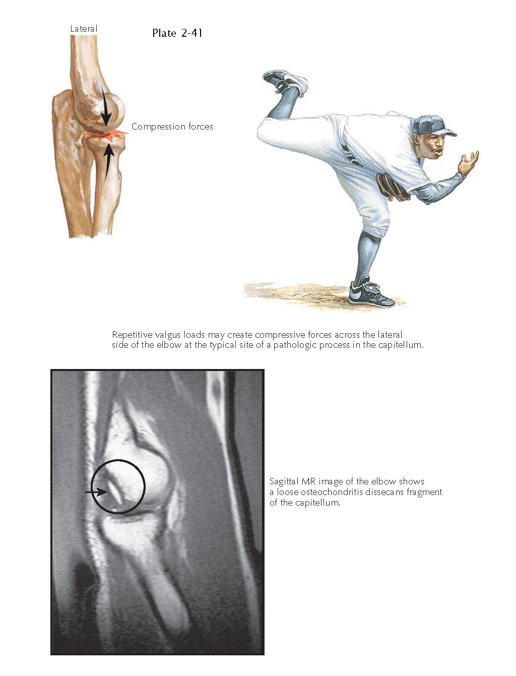 OSTEOCHONDRITIS DISSECANS OF THE ELBOW
