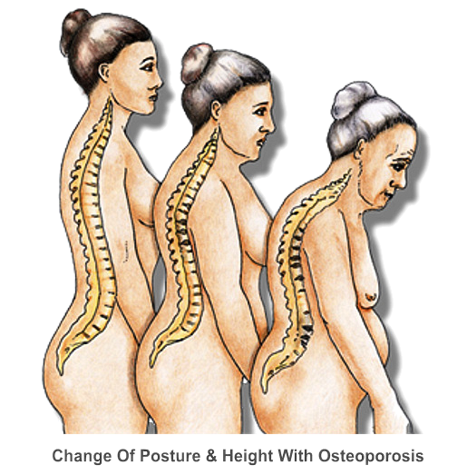Change Of Posture And Height With Osteoporosis