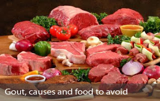 Top 4 Foods That Causes Or Worsen Gout You Should Know