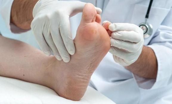 5 Obat Ampuh Mengatasi Telapak kaki Yang Terkena Kutu Air
