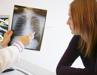 Pengobatan Tradisional Penyakit TBC