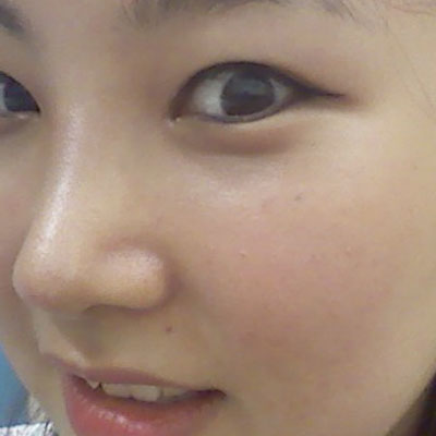 짱이뻐! - Korea Rhinoplasty Is The Secret How To Boost My Confidence