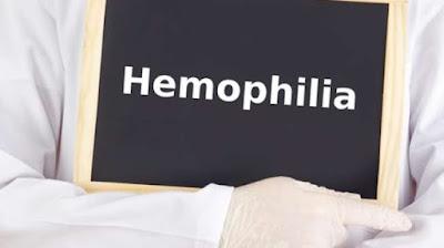 Cara Mengobati Penyakit Hemofilia