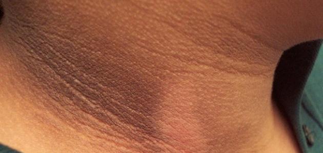 ما هو مرض الشواك الأسود وما أسبابه وأعراضه