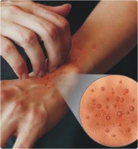 Cara Mengatasi Alergi Kuilt