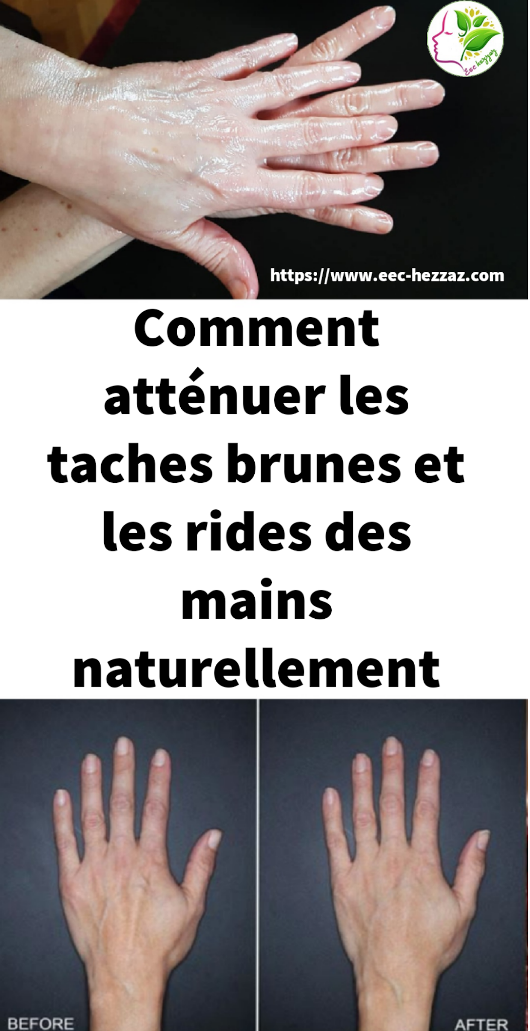Comment atténuer les taches brunes et les rides des mains naturellement