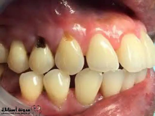 كيفية الحفاظ على الأسنان من التسوس.