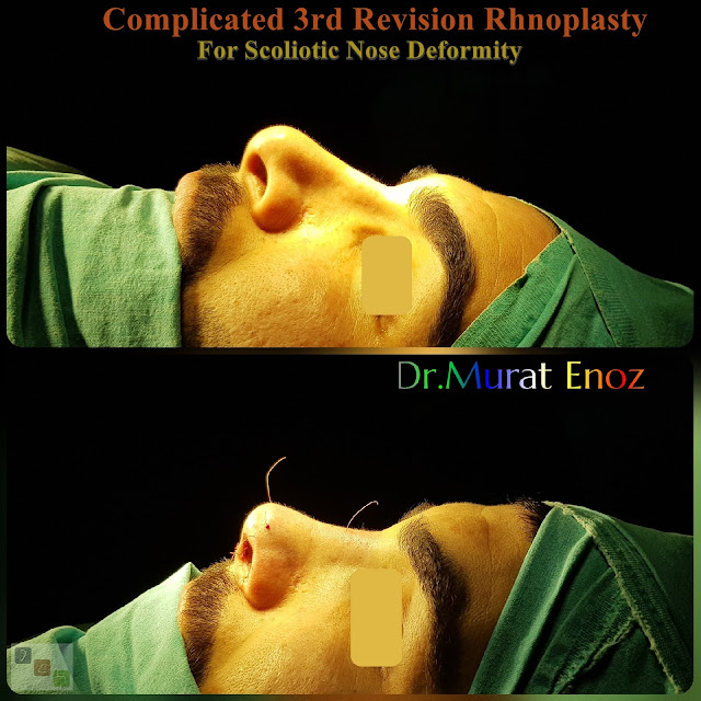 hanging columella, temporalis fascia, scoliotic nose deformity, revision rhinoplasty, complicated tertriary rhinoplasty for men istanbul, 3rd nose job, 3rd nose aesthetic surgery, micromotor assisted revision rhinoplasty, micro-motor assisted revision nose asthetic surgery