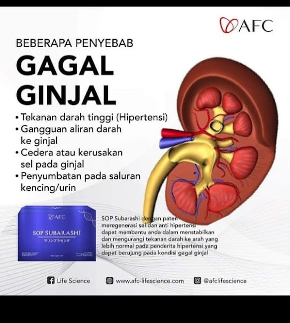 Agen Jual: AFC SOP Subarashi Salmon Ovary Peptide, SOP 100 Salmon Ovary Peptide Review, di Padang