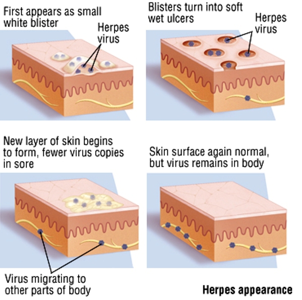 Living With Herpes: Health Tip