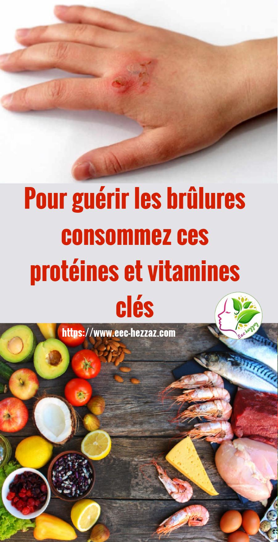 Pour guérir les brûlures consommez ces protéines et vitamines clés