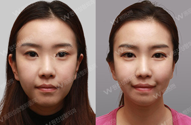 짱이뻐! - Before and After Photos Korean Eye Plastic Surgery