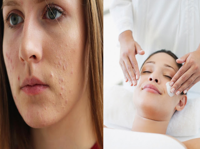 Testez ce mélange pour un nettoyage complet et profond du visage