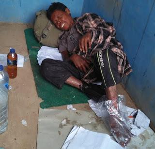 Penderita Kusta Asal Kabupaten Solok itu, Terbaring Lemah di Gerbang Masjid Ikhwan Dharmasraya