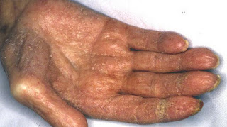 A severe form of scabies affecting the integrity of the skin scabies rash pictures