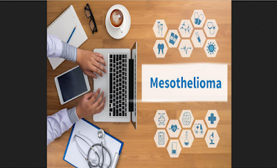 Mesothelioma cancer- how to avoid it and treatments, mesothelioma, mesothelioma cancer