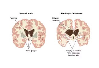 About Huntington's Disease, Its Causes, Effects And Effective Treatments