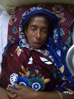 সাতক্ষীরার পল্লীতে সর্পদংশিত নারীকে আশংকাজনক অবস্থায় হাসপাতালে ভর্তি