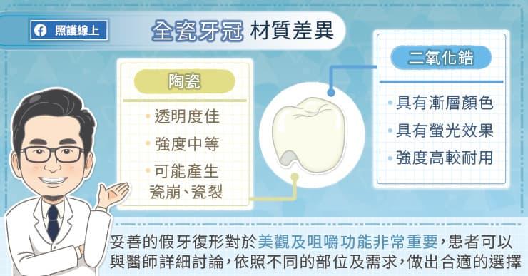 全瓷牙冠材質差異